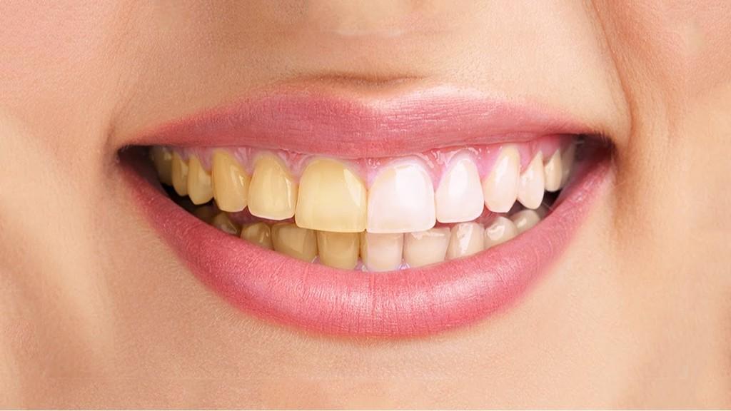 У курильщиков зубные пломбы служат меньше