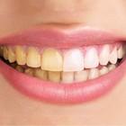 Укурильщиков зубные пломбы служат меньше