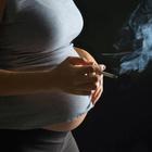 Причина  детского церебрального паралича (ДЦП) – курение во время беременности