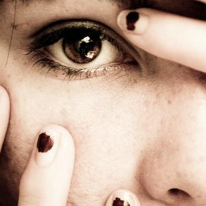 Профилактика угревой сыпи у подростков