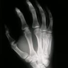 Как работает рентген