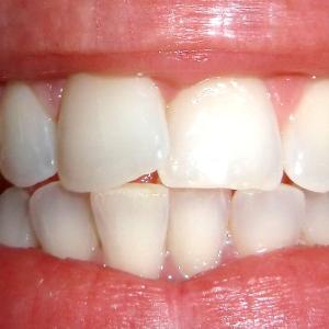 Здоровые зубы – здоровая поджелудочная