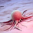 Обнаружен новый метод, позволяющий диагностировать рак без забора крови