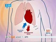 Приоритет - здоровье: почему помолодел инфаркт?