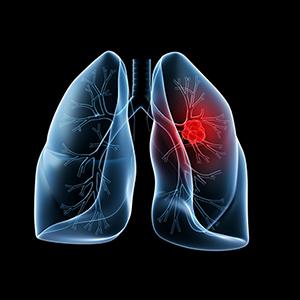 К чему приведет курение пачки сигарет в день?