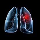 Кчему приведет курение пачки сигарет вдень?
